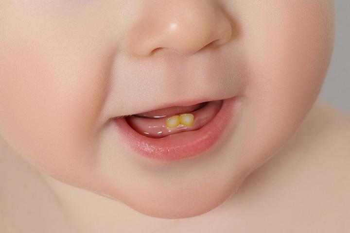 لک دندان,Tooth-Discoloration