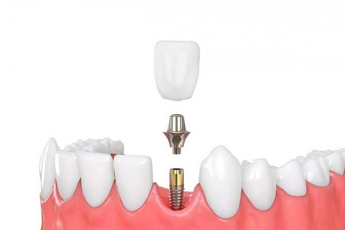 ایمپلنت دندان, آیا ایمپلنت دندان درد دارد ؟ ,dental-implant