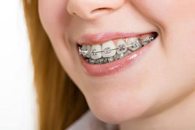 هدگیر ارتودنسی,Orthodontic-Headgear