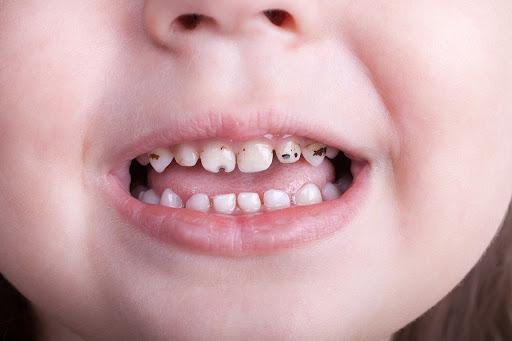 سیاهی دندان بچه ها,teeth
