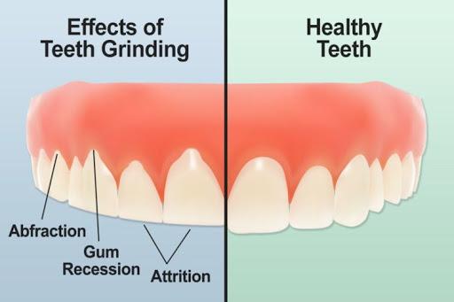 علل ساییدگی دندان
